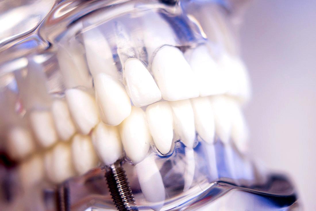 Impiantologia dentale presso lo studio odontoiatrico Anderluzzi a Verona