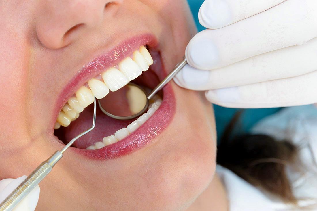Prevenzione e igiene orale presso lo studio dentistico Anderluzzi
