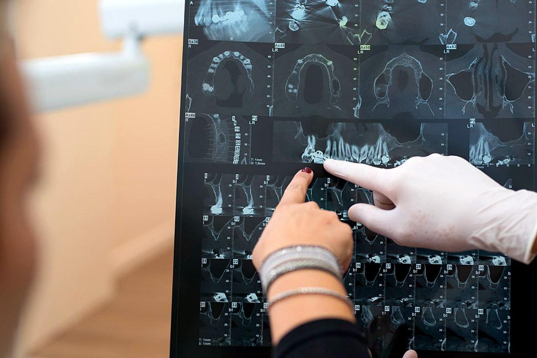 Radiologia presso lo studio odontoiatrico Anderluzzi in provincia di Verona