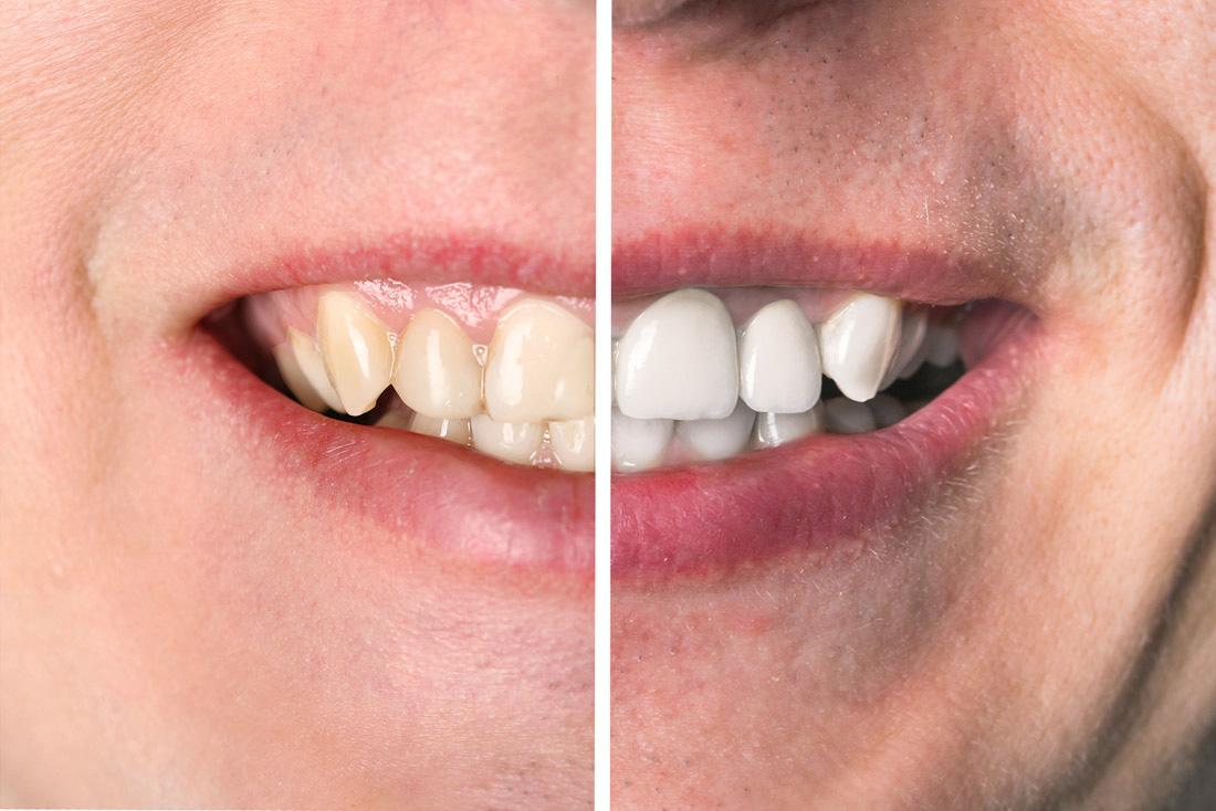 Sbiancamento ai denti, trattamento proposto dal dentista Dott. Anderluzzi a Mezzane in provincia di Verona