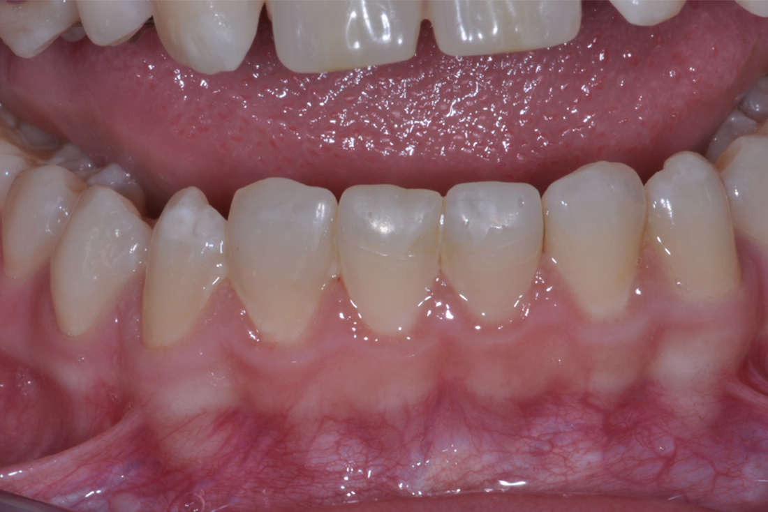 Frattura agli incisivi dopo l'intervento della clinica odontoiatrica