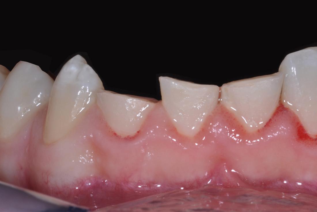 Frattura agli incisivi prima dell'operazione dentistica