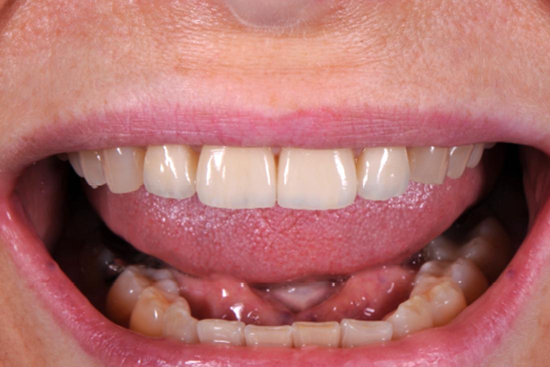 Occlusione dentale dopo l'intervento del dentista