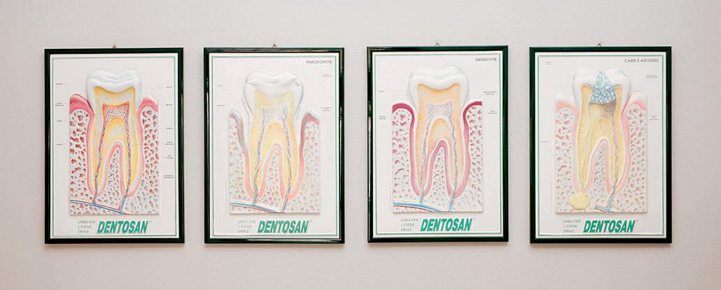 Infografiche Dentosan